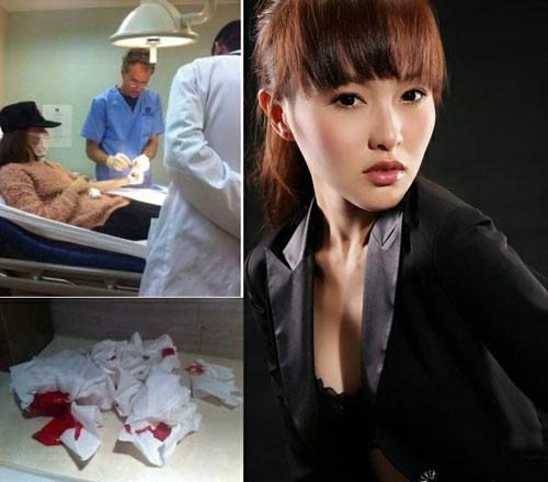 唐嫣自杀事件_张柏芝唐嫣赵薇 细数娱乐圈为情自杀自残的女明星_新蓝网