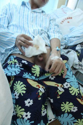 7月3日下午,记者和刘先生的妻子一起来到整形医院。自称肖主任的中年男子称,手术本身没有问题,没有发生任何感染。问题出在手术后,患者因为撒不出尿,自行用开水热敷造成烫伤,与手术后麻药药效没过不感觉到烫有关。
