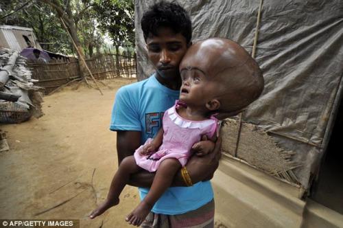 女婴脑部积水10公升无法闭眼术后获新生(图)