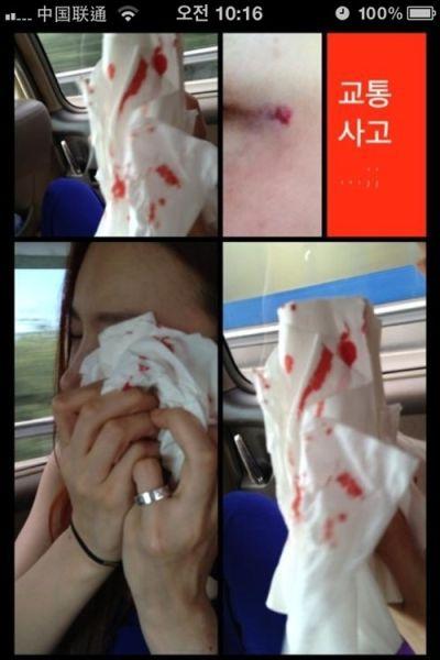 河莉秀受伤照片(韩国网站截图)