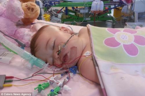 薇露在12天内心跳停止了三次。