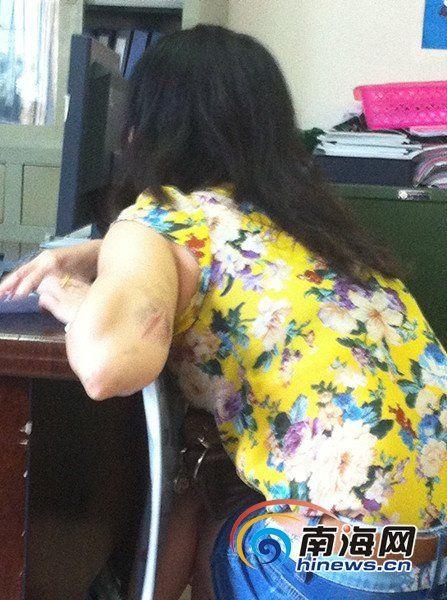 阿芳手臂上有抓痕(南海网记者陈望摄)