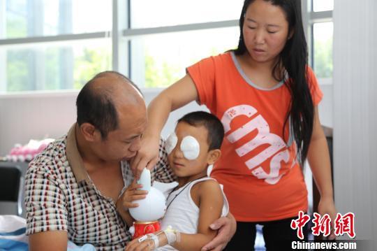 小斌斌植入义眼球第一天康复情况良好无感染迹象
