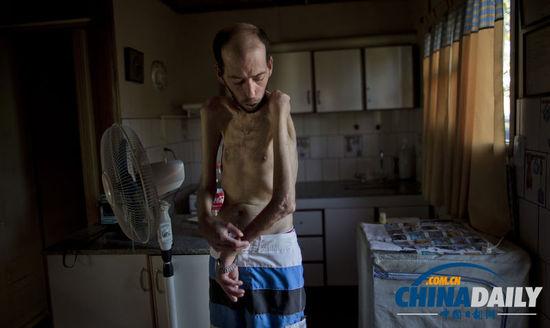 农业国阿根廷被曝过度依赖化学物增产 致残严重