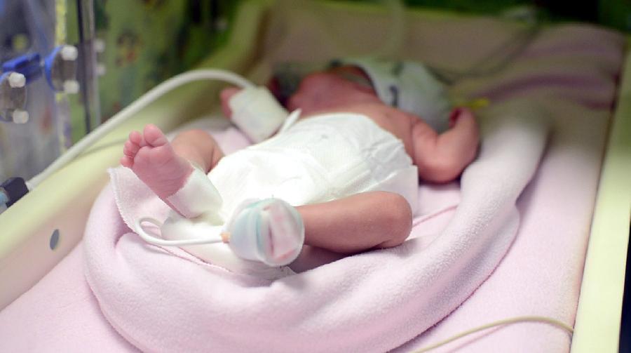 (国际)(1)匈牙利一名脑死亡孕妇产下婴儿并捐献器官