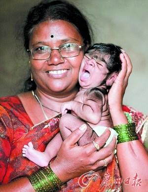 印度一名女婴患家传怪病身体多毛酷似狼孩(图)