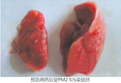预防用药后受PM2.5污染的鼠肺。