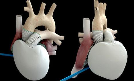 医疗技术新突破:法国为病患移植人工心脏(图)