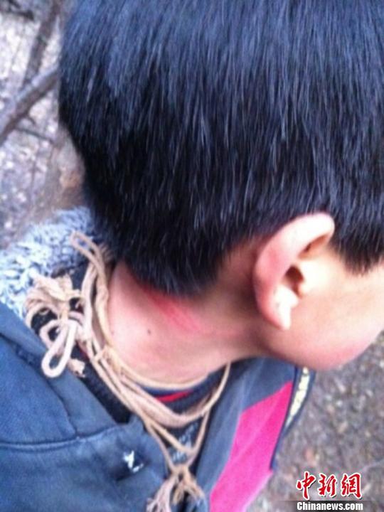 男孩脖子已经被勒红 东阳公安 摄