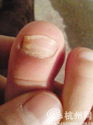 杭州一家甲级幼儿园十多个孩子指甲断裂
